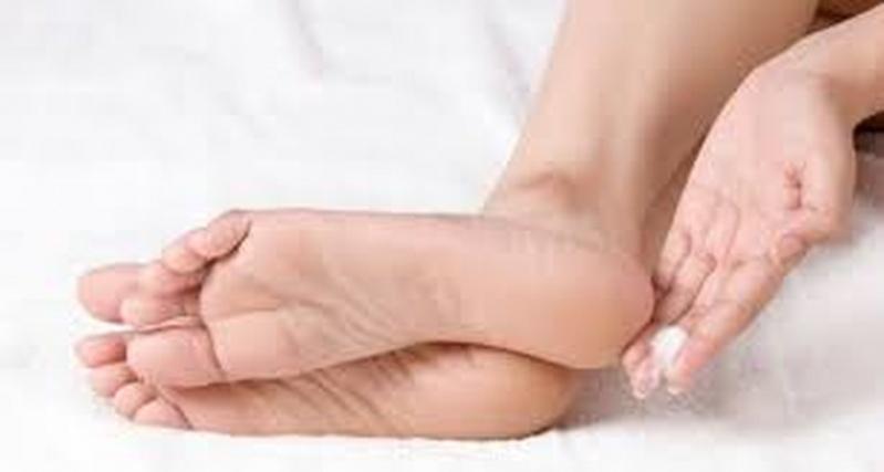 Clínica para Tratamento para Rachadura de Pés Raposo Tavares - Tratamento contra Rachaduras entre Os Dedos