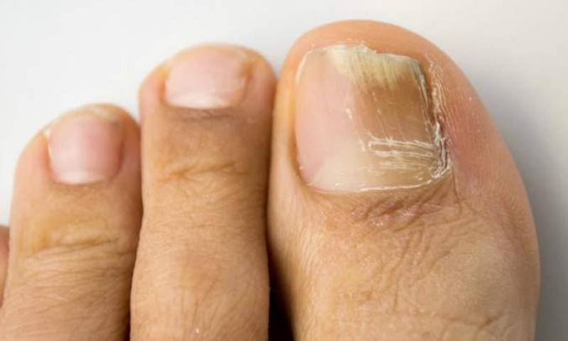 Onde Encontro Tratamento para Unhas Amareladas Pinheiros - Tratamento em Pés Sensíveis