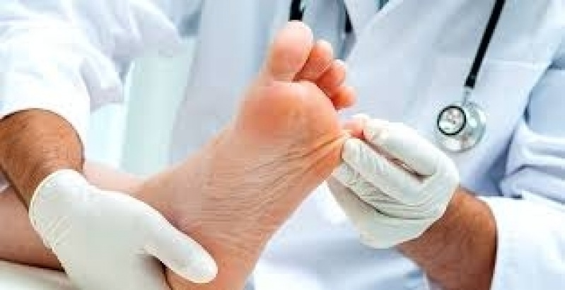 Podólogo para Tratamento contra Rachaduras entre Os Dedos Jardim Bonfiglioli - Tratamento de Rachaduras