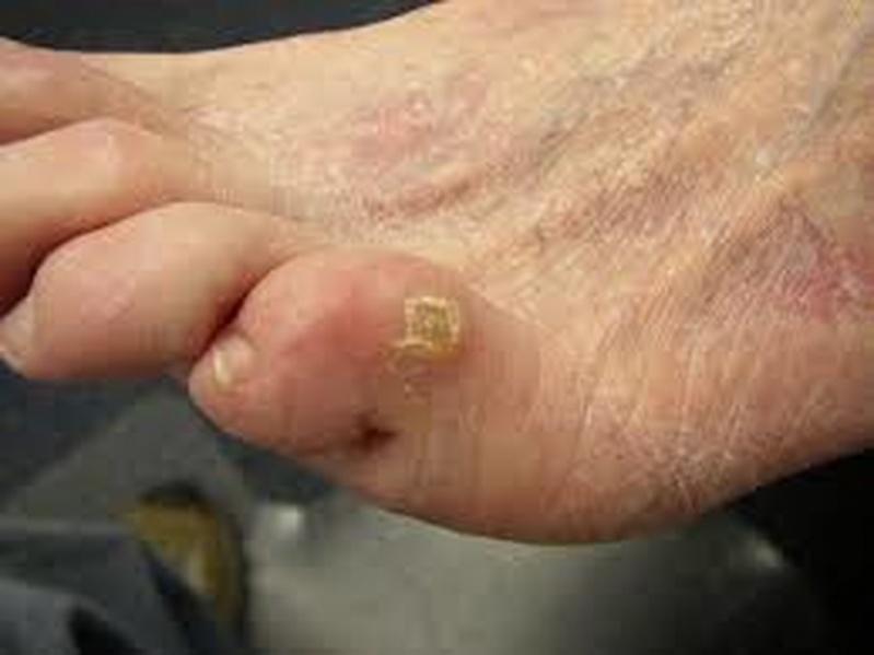 Podólogo para Tratamento de Calos nos Dedos dos Pés Campo Belo - Tratamento de Calosidade