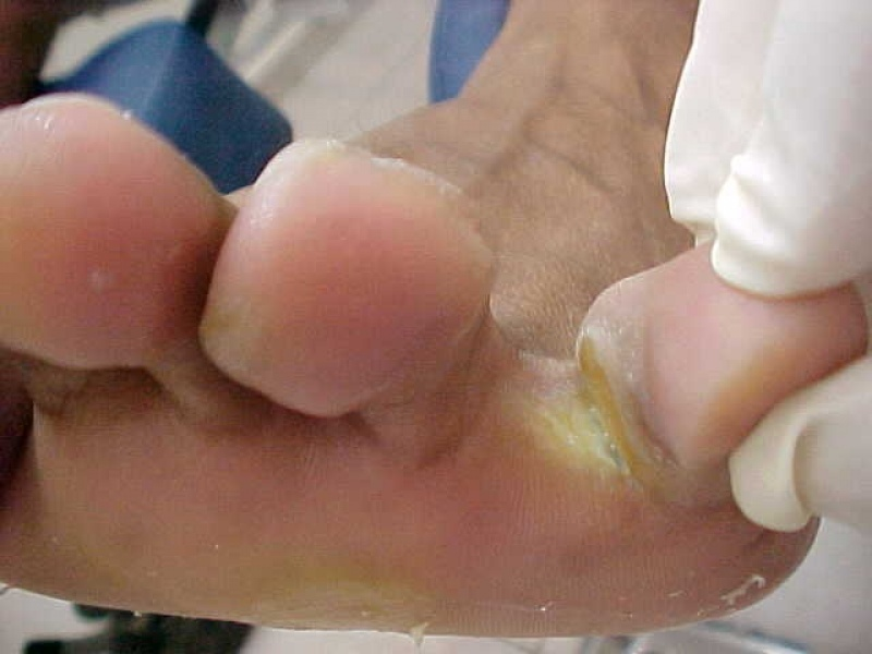 Quanto Custa Tratamento contra Fungo nos Pés República - Tratamento de Micose das Unhas