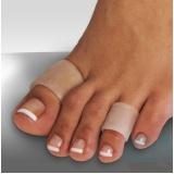 clínica para tratamento de calos entre os dedos Santa Cecília
