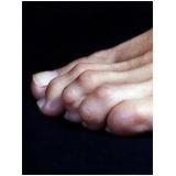 clínica para tratamento de calos nos dedos dos pés Jardim Paulistano