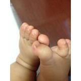clínica para tratamento para unha encravada em bebê Jardim América