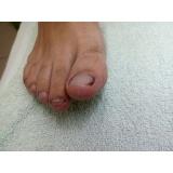 clínica de podologia para problemas nos pés