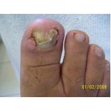 onde encontrar clínica de podologia para tratamento micose Vila Andrade