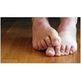 onde encontrar clínica de reconstrução de unhas de pés Cidade Dutra