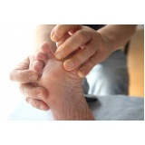 onde encontro tratamento contra descamação nos pés Jardins
