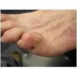 podólogo para tratamento de calos nos dedos dos pés Água Branca
