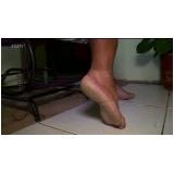 podólogo para tratamento de rachadura no pé Sacomã