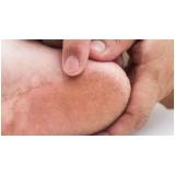 podólogo para tratamento de rachadura nos pés Santa Cecília