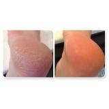 podólogo para tratamento para rachadura de pés Lapa