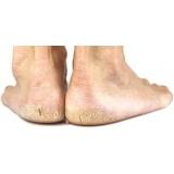 podólogo para tratamento para rachaduras na sola dos pés Sé