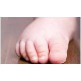 podólogos para bebê Praça da Arvore