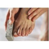 produtos para fissuras nos pés Água Funda