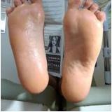 produtos para pés ressecados preço Santa Cecília