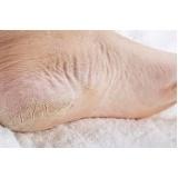 quanto custa produtos para pés ressecados Morumbi