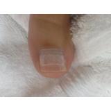quanto custa reconstrução de unhas com gel Santa Efigênia