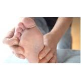 quanto custa tratamento contra descamação nos pés Jockey Club