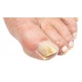 quanto custa tratamento de micose nos pés Lapa