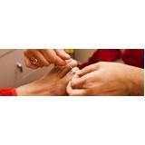 podólogo para reconstrução de unhas