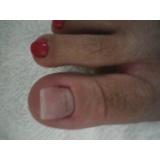 reconstrução de unhas dos pés