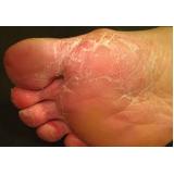 tratamento contra fungo nos pés preço Liberdade