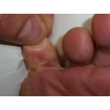 tratamento contra fungo nos pés Glicério