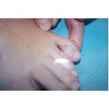 tratamento de calos entre os dedos preço Rio Pequeno