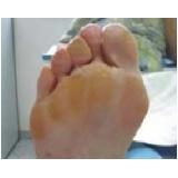 tratamento de calos na sola do pé Vila Mariana