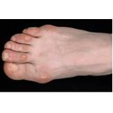 tratamento de calos nos dedos dos pés Jaguaré