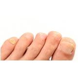 tratamento de fungo das unhas Glicério