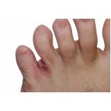 tratamento de micose entre os dedos Santo Amaro