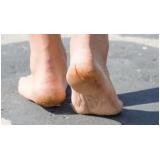 tratamento de rachadura nos pés Consolação