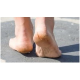 tratamento de rachadura nos pés Pacaembu