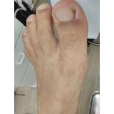 tratamento de unha encravada com granuloma Ibirapuera