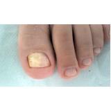 tratamento dores nas unhas Glicério
