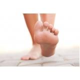 tratamento em pés sensíveis Praça da Arvore