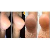 tratamento para rachadura de pés preço Rio Pequeno