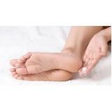 tratamento para rachadura de pés Aclimação