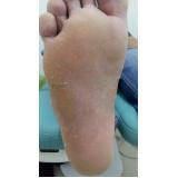 tratamento para rachaduras na sola dos pés Bom Retiro