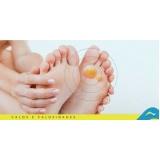 tratamentos de calos e calosidades Jabaquara
