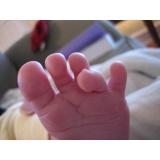 tratamentos de dores nos dedos dos pés preço Vila Sônia