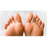 tratamentos de dores nos dedos dos pés Vila Buarque