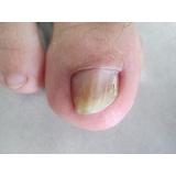 tratamentos de fungos das unhas Moema