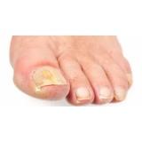 tratamentos de micose nos pés Brooklin