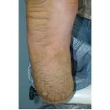 tratamentos de rachadura no calcanhar Morumbi