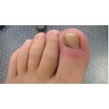 tratamentos de unha encravada com granuloma Pacaembu