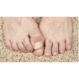 tratamentos dores entre os dedos preço Ibirapuera