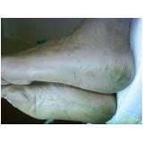 tratamentos para fissuras no calcanhar Santa Efigênia